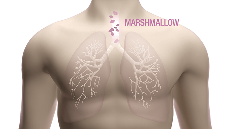 lung marshmallow